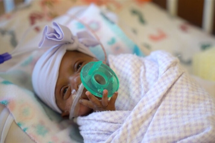 "Nicknamed ""Saybie"" by her doctors, this little girl is believed to be the smallest surviving premature baby in the world."